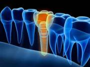 Dentist Tooth Replacement Dental Implants Services Mesa AZ Nearest To Me - Dr. Edward Fritz