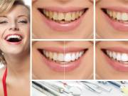 Choose Certified Cosmetic Dentist in Philadelphia for Dental Treatment